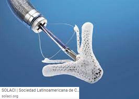 El primer implante de un Mitraclip en la región se dio en el Hospital Santa Sofía